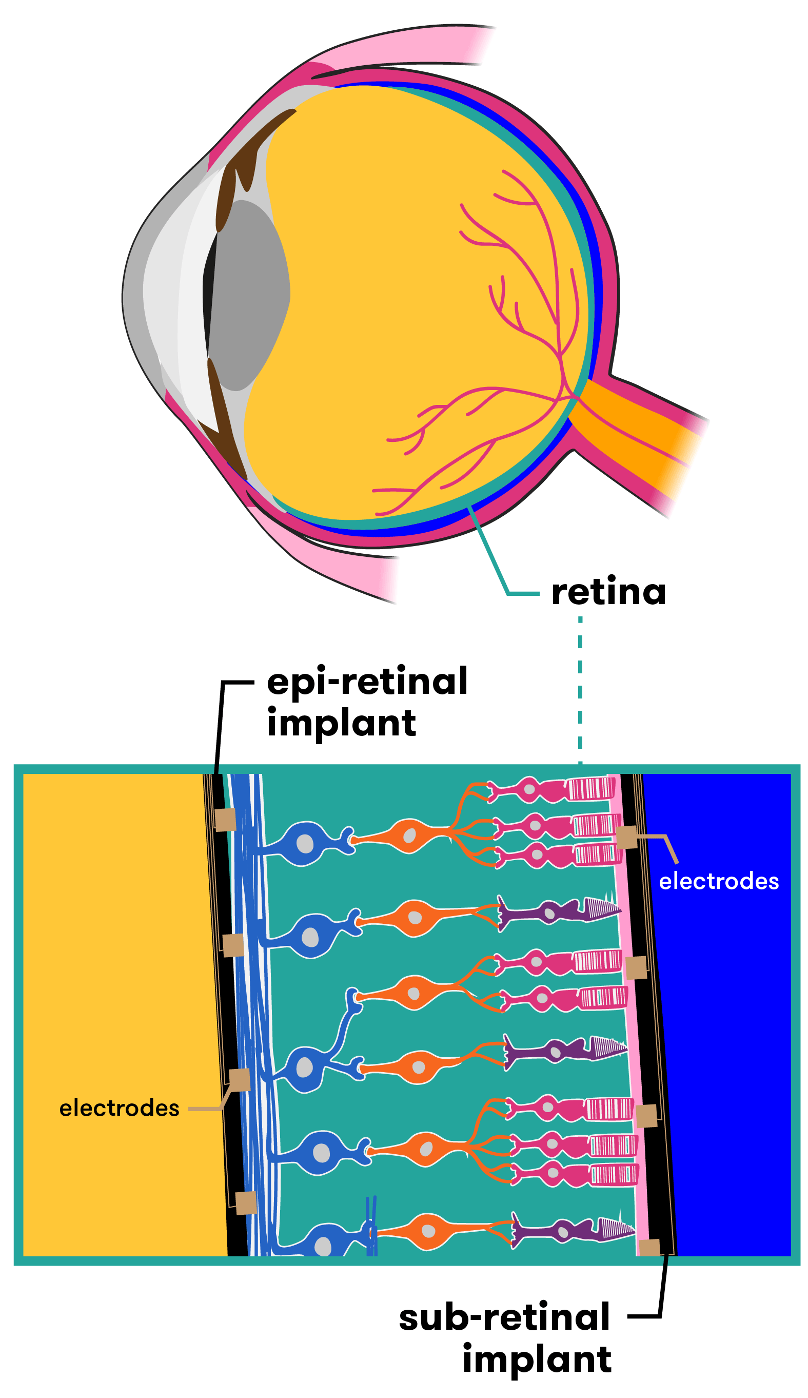 Epiretinal implants are placed in front of the retina; subretinal implants are placed at the back.