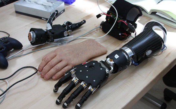A brain-controlled prosthetic arm.