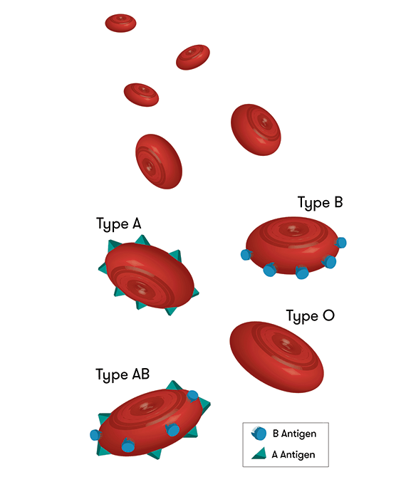 A diagram showing how the antigens on red blood cells determine blood type. Cells with A antigens on them give type A blood; cells with A antigens on them give type B blood; cells with both A and B antigens on them give AB blood; and cells with neither A nor B antigen on them give type O blood.