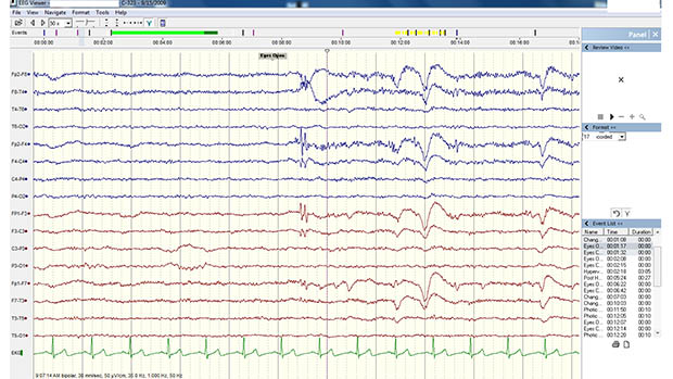 Screenshot of an EEG readout on a computer screen
