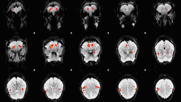 Picture of an fMRI scan showing brain activity in particular locations of the brain