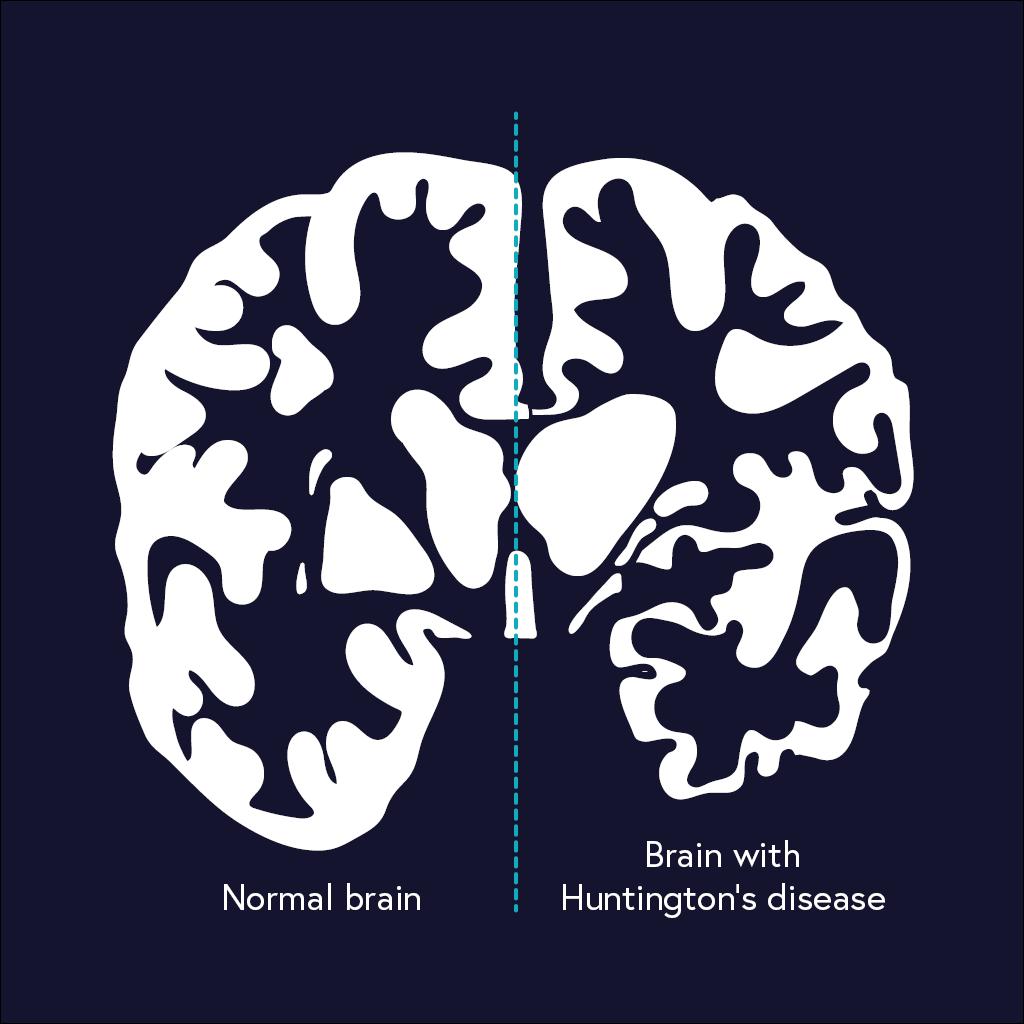 Huntington S Disease Curious